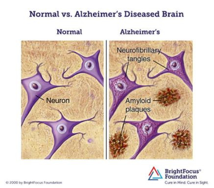 Alzheimers explained simply, Dementia explained simply, What is dementia?, Natural prevention of dementia, Natural prevention of Alzheimer's,