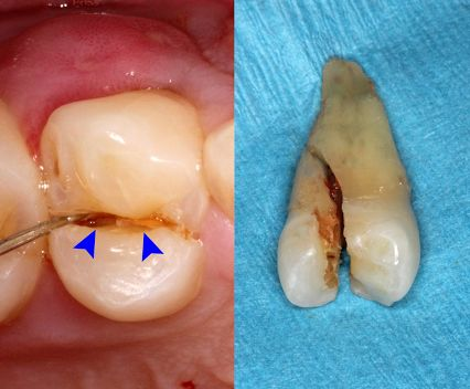 Split Tooth. A split tooth is often the result of the long term progression of a cracked tooth. The split tooth is identified by a crack with distinct segments that can be separated. A split tooth can never be saved intact. The position and extent of the crack, however, will determine whether any portion of the tooth can be saved. In rare instances, endodontic treatment and a crown or other restoration by your dentist may be used to save a portion of the tooth.
