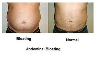 Bloating - Whey protein side effects