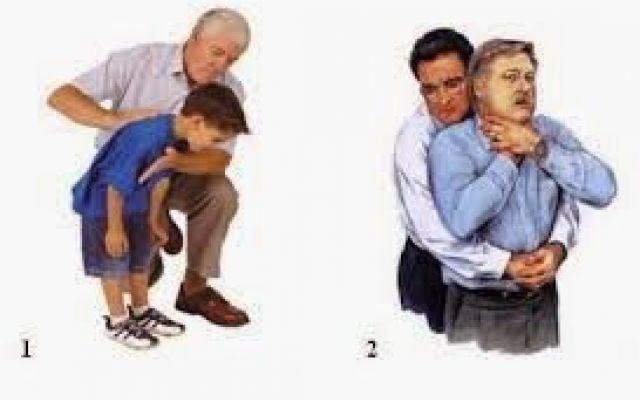 La manovra di Heimlich per un primo soccorso #primosoccorso #urgenza #respirazione