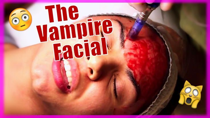 MICRONEEDLING PEN TREATMENT VLOG...OMG!   The Vampire Facial for Acne Scars