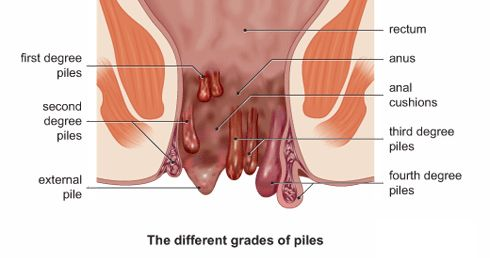 There are many people, who have been suffering from various rectal or anal illnesses such as piles, fistula, fissure, pilonidal sinuses, and many more. Among all these anal illnesses, piles are most common type of illness, which is found in many individuals of every age group. Piles are a type of anal desease that occur due to engorgement of anal blood vessels. Get more details here: http://www.ayurcure.com/piles-treatment