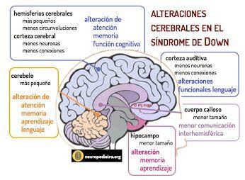 Alteraciones cerebrales en el SD