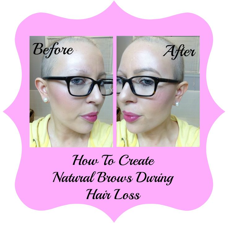 How to create natural brows during hairloss. Chemo + Eyebrows