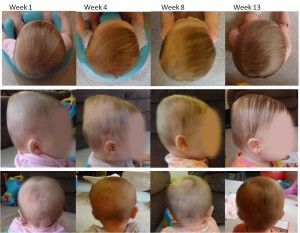 17 Best Images About Flat Head Syndrome In Babies