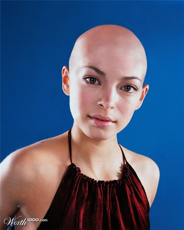 Women's Hair Loss Pictures: Causes, Treatments, and More