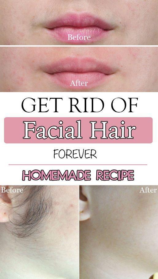 How to Get Rid of Facial Hair Forever!    #SkinWhiteningTips