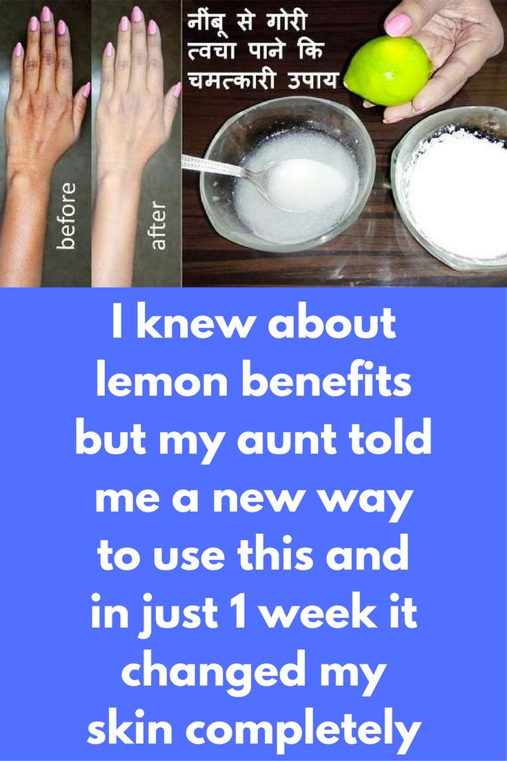 I knew about lemon benefits but my aunt told me a new way to use this and in just 1 week it changed my skin completely In this post I will tell you 4 magical ways to use lemon for skin lightening 1) Lemon Face Scrub For this you will need salt and lemon juice Add few drops of lemon juice in salt and rub it gently on your face. It will remove all dead skin from your face and lemon will …