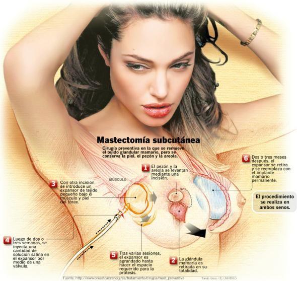 Mastectomía preventiva y reconstrucción mamaria, por el bien de las mujeres #Clínica #DeCorps #Coruña