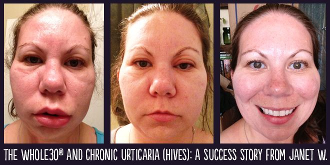 Whole30 Success Story: Janet W. and Chronic Urticaria (Hives) - See more at: http://whole30.com/2013/10/whole30-success-story-hives/#sthash.voty7pcf.dpuf