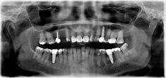 Dental X-ray of Teeth with Implants stock photo