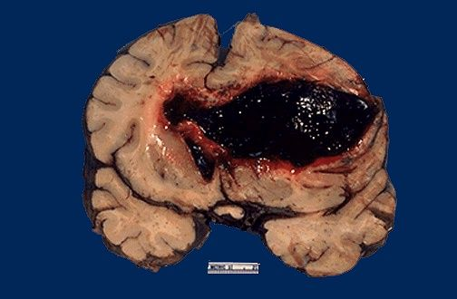 The large haemorrhage in this adult brain arose in the basal ganglia region of a patient with hypertension. This is classed as a haemorrhagic stroke. The other form of stroke is an ischemic stroke,...