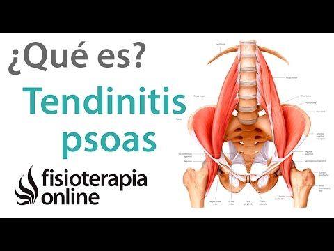 Tendinitis de psoas ilíaco o psoitis - Qué es, causas, síntomas y tratamiento - YouTube