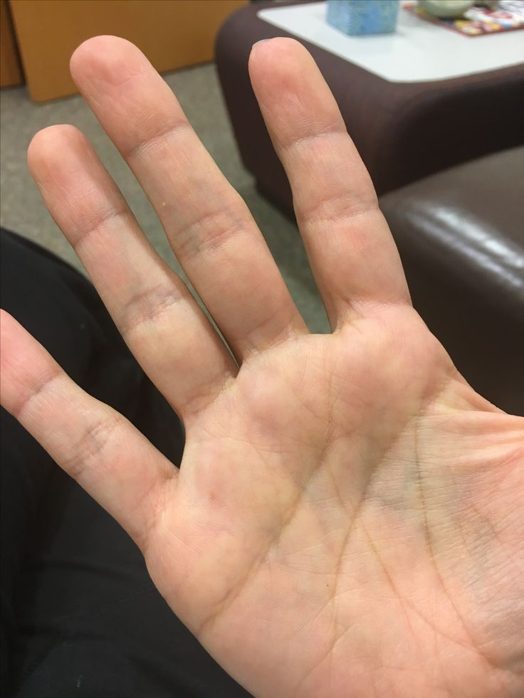 Look at all the veins you can see right through my palm