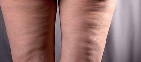 Δείτε την ΑΠΟΛΥΤΗ σπιτική συνταγή κατά της κυτταρίτιδας! Υπόσχεται να βελτιώσει την εικόνα των μηρών και των γλουτών σας σε ΕΝΑΝ ΜΗΝΑ! | Φτιάξτο μόνος σου - Κατασκευές DIY - Do it yourself