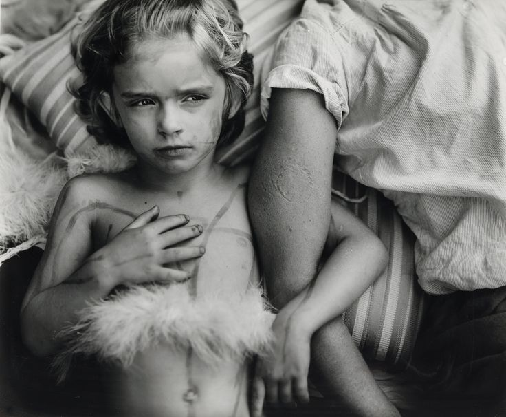 Jessie Bites by Sally Mann, 1985