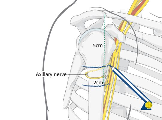 Proximal humerus fracture: axillary nerve is vulnerable to injury.