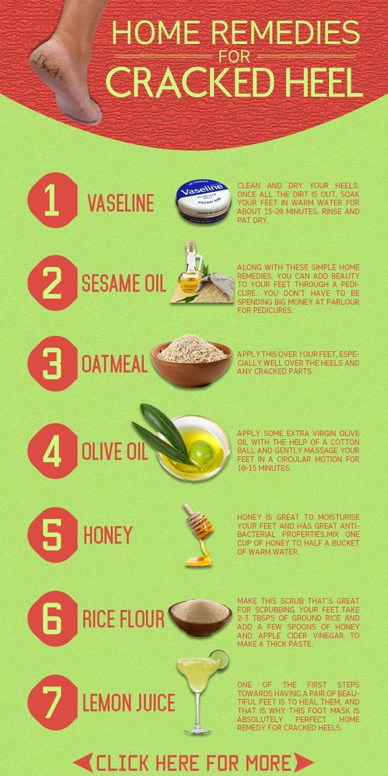 Cracked Heels Remedy Lots Of DIY Home Treatments   The WHOot