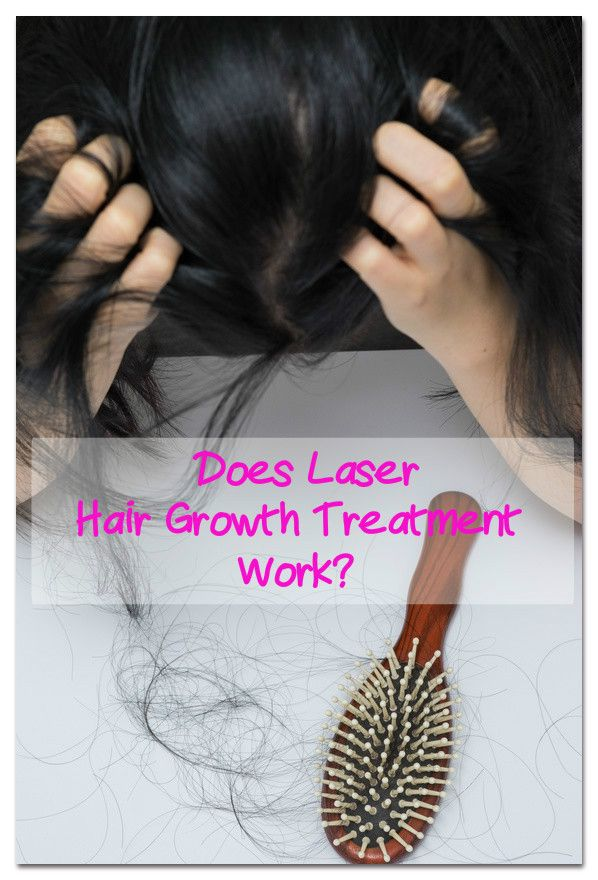 Laser Hair Growth Review, Does This Treatment Work for Hair Loss?  #hair #loss #llaser
