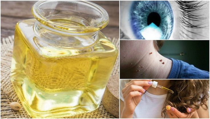 14 Reasons Why Every Home Needs A Bottle Of Castor Oil
