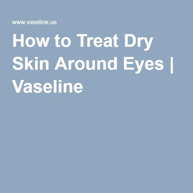 La Vie Diy Diy All Natural Detoxifying Mask: 1000+ Ideas About Dry Skin Around Eyes On Pinterest