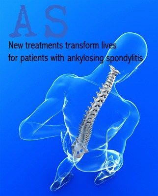 The American College of Rheumatology has published new guidelines for the treatment of ankylosing spondylitis, emphasizing the strong evidence for treatment with nonsteroidal anti-inflammatory drug…