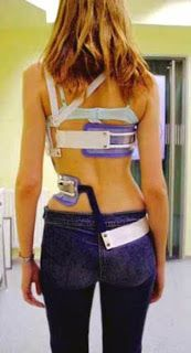 Triac skoliosis Brace | DOPS