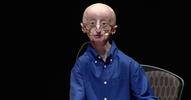 Meet Sam Berns:He's a 17-year-old inspiration that will inspire you to lead a more fulfilling life. Sam suffers from progeria, a rare disease thatonly about80 children throughout the world have. Children appear normal until around age 2, when they suddenly begin to age drastically. Most children who have this disease die around age 13, so... View Article