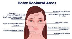 25 beautiful botox injection sites ideas on pinterest face injections aesthetic dermatology. Black Bedroom Furniture Sets. Home Design Ideas