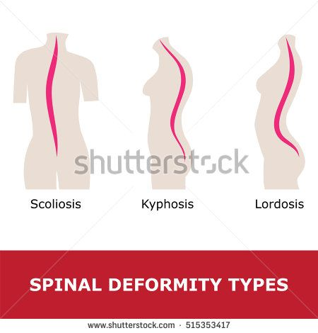 scoliosis, lordosis and kyphosis. vector illustration of spinal deformity types.