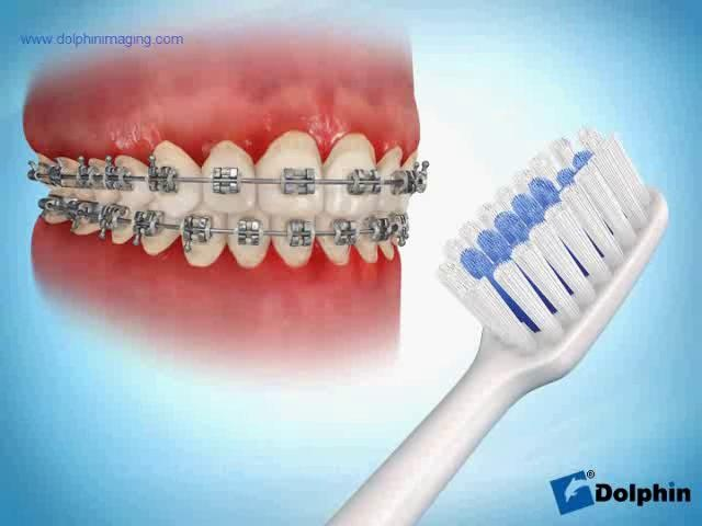 95 best brushing teeth and braces correctly and retainers images on brushing correctly with braces not damon braces but still great brushing technique solutioingenieria Images