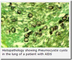 UK: Rising Pneumocystis Pneumonia