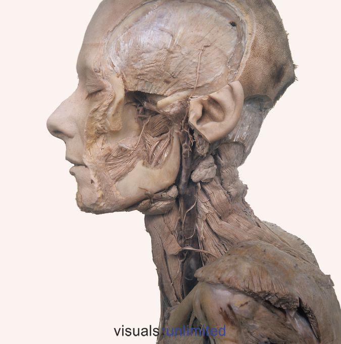 Cadaver dissection of the left side of the face and neck showing the submandibular glands, lymph nodes, internal jugular vein, lingual nerve, and parotid duct (gland removed).