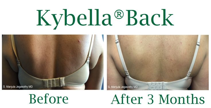 Stubborn back fat, which can be difficult to liposuction, can be diminished by 50% with 1 Kybella® injectable fat-melting treatment.