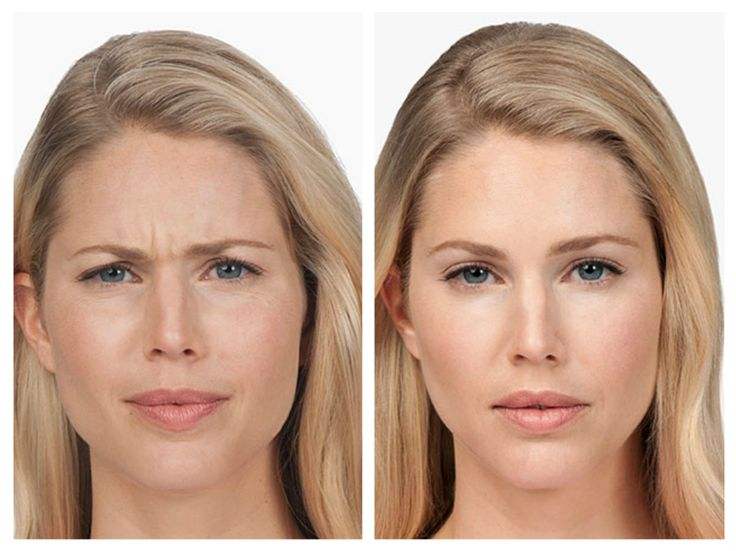 #Botox, is a purified protein that is derived from bacterium Clostridium Botulinum, and has been used successfully for well over a decade to treat people with uncontrolled muscle spasms in the eyelids (like tics) and many other medical conditions. It is injected into the affected facial muscle. #Botox blocks all impulses from the nerves connecting the muscle, thus making the muscles to relax instead of contract.