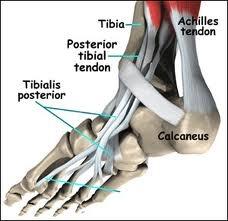 Achilles Heel Insertional Tendonitis
