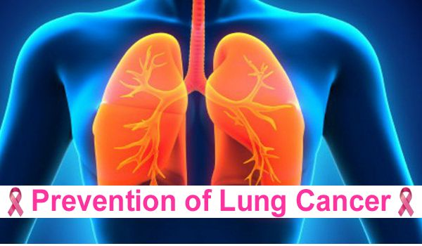 Prevention of Lung Cancer