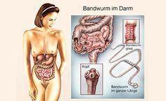 (Zentrum der Gesundheit) - Zu den Darmparasiten zählen so unangenehme Zeitgenossen wie Amöben, Giardien, Bandwürmer, Fadenwürmer, Peitschenwürmer, Spulwürmer, Madenwürmer, Hakenwürmer und einige mehr. Wahrscheinlich sind Sie sicher, dass Sie derart abscheuliche Darmbewohner keinesfalls beherbergen. Doch die Wahrscheinlichkeit, dass auch Sie von einem Parasitenbefall betroffen sind, ist grösser als Sie denken, denn nahezu jeder Zweite ist heute bereits davon betroffen. Die Tatsache, dass der…