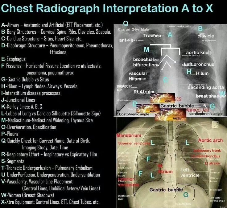 Ungewöhnlich X Ray Zertifizierung Zeitgenössisch - Menschliche ...