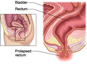 rectal prolapse treatment by herbal medicine