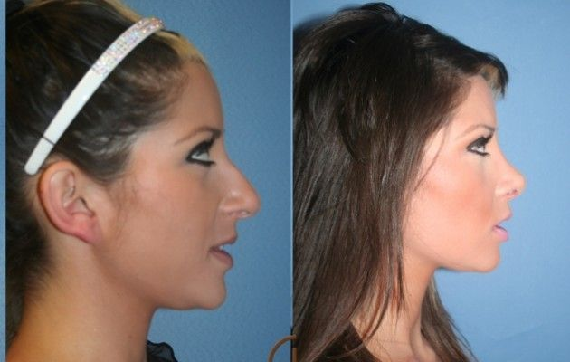 Before & After Nose Job Http://www.bestnosejob.com/nose