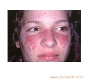 12 Most Common Symptoms of Lupus+Best Treatment
