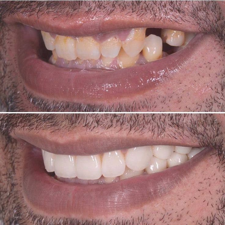 Huge Smile Transformation by @drdmontalvo using veneers crowns onlays grafting implants and what not Tag someone who loves dental aesthetics  Via @dentistrymyworld  DoubleTap & Tag a Friend Below  Follow us if you love  Update pictures everyday   #dentistry #dentist #odontologia #dental #odonto #tooth #dentista  #odontolove #odontoporamor #teeth #ortodontia #dentalstudent #dentalhygiene #odontologo #orthodontics #prosthodontics #oralsurgery #dentalassistant #odontologiaestetica  #implant…