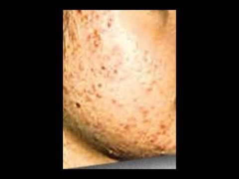 Nuevo virus para el tratamiento del acne es descubierto - http://solucionparaelacne.org/blog/nuevo-virus-para-el-tratamiento-del-acne-es-descubierto/