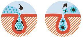 Hautpflege: Wundermittel - so haben Mitesser und Pickel keine Chance | BRIGITTE.de Die Zutaten für das Wunder-Peeling:      1 EL Wasser     1 EL Meersalz     1/2 EL Zitronensaft   Versammelt die drei Zutaten in einer Schüssel und mischt alles ordentlich durch. Tragt euer selbstgemachtes Peeling im Bereich der T-Zone (Nase, Kinn und Stirn) auf und reibt diesen Bereich drei Minuten lang damit ein.
