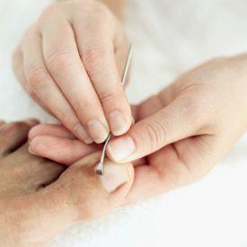 Toenail Fungus Treatment and Home Remedies