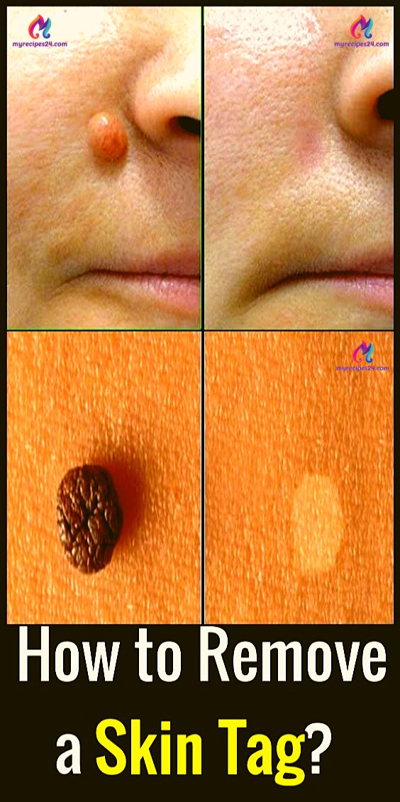 How to Remove Skin Tags, According to Dermatologis…