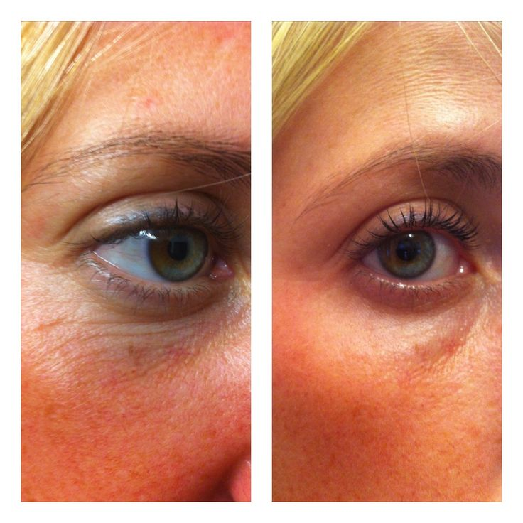 In her 30's, results after only 4 days  ONE awesome product you use only at night. REAL Science, REAL Results! Age-defying treatment- fine lines wrinkles, skin texture, pores, aging and sun damaged skin-30day money back guarantee. www.beccawesley.nerium.com