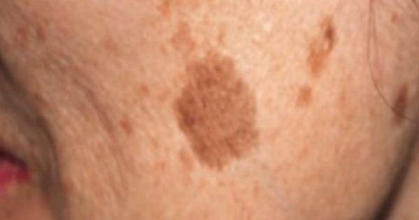 Άτομα μεγαλύτερης ηλικίας έχουν συνήθως καφέ κηλίδες και εμφανίζονται συνήθως στο πρόσωπό, τα πόδια, τα χέρια, και τους ώμους. Καθώς μεγαλώνουμε, αυτές οι