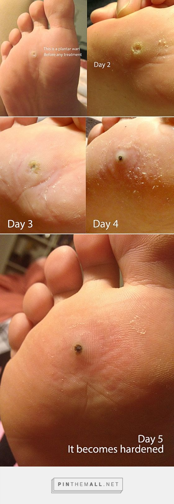Plantar wart removal | chaddycake - created via https://pinthemall.net~ What do you need to get rid of this nasty thing is: 1. Apple Cider Vinegar. ANY apple cider vinegar. I went to Coles and bought a bottle of  Cornwell's Apple Cider Vinegar which costs http://www.wartalooza.com/treatments/over-the-counter-wart-removers